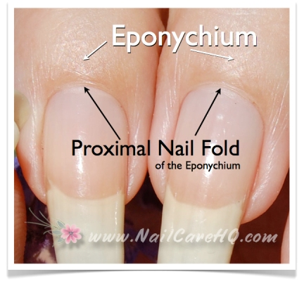 see-through-nails-eponychium-and-proximal-fold-0011
